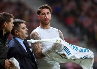 Lucas le fracturó el tabique nasal a Ramos: duda ante el APOEL