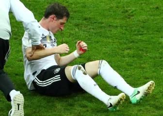 Rudy sufrió una fractura nasal en el partido ante Suecia