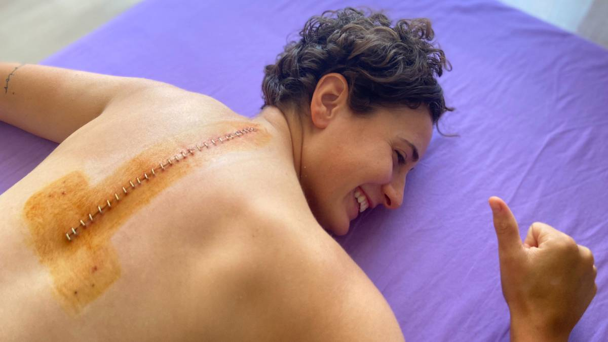 Ana-Carrasco-shows-the-huge-scar-from-her-operation