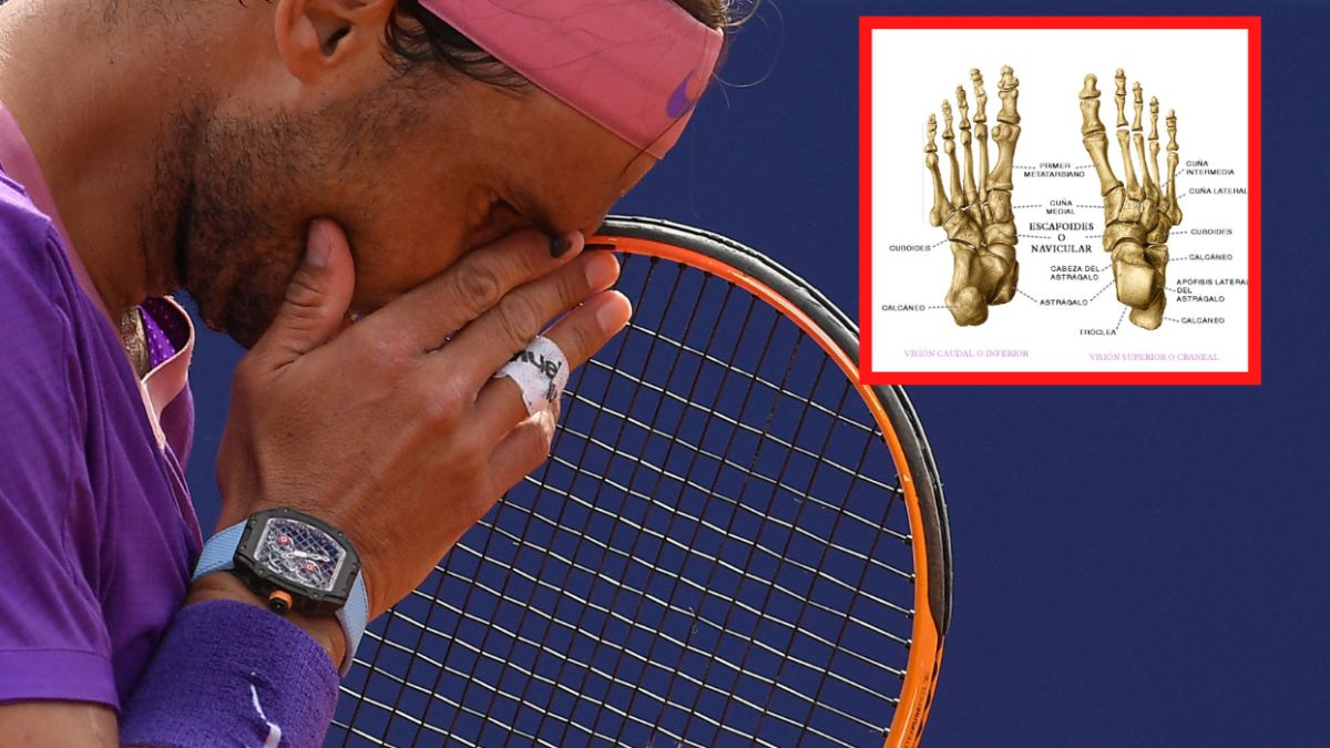 Müller-Weiss-syndrome-the-ailment-that-plagues-Nadal